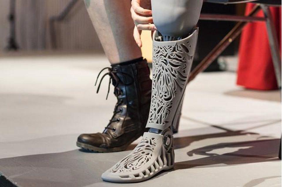 https://thumbor.forbes.com/thumbor/960x0/https%3A%2F%2Fblogs-images.forbes.com%2Ftjmccue%2Ffiles%2F2014%2F09%2Fnatasha-long-prosthetic-leg-by-melissa-ng.jpg